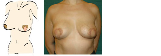 Steps in an areola-sparing mastectomy